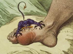 Dolor en el pie