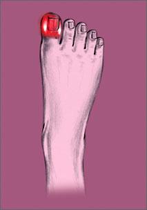 dedo gordo pie hinchado y rojo