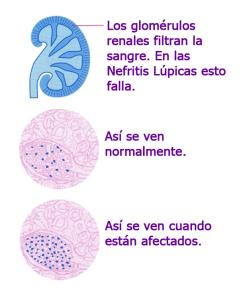 Glomérulos del riñón
